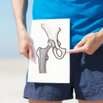 Hip Replacement FAQs by Medfin