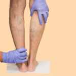 Varicose Veins: Everything you need to know