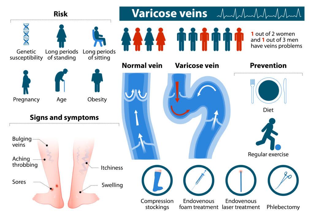 varicose veins prevention measures