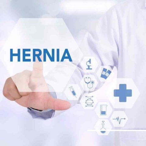 hernia FAQS